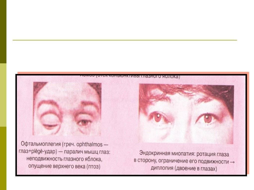 Лагофтальм глаза: лечение, причины, симптомы, осложнения и профилактика