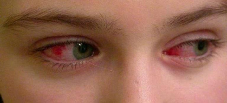 Красные глаза у ребенка при простуде | глазной.ру