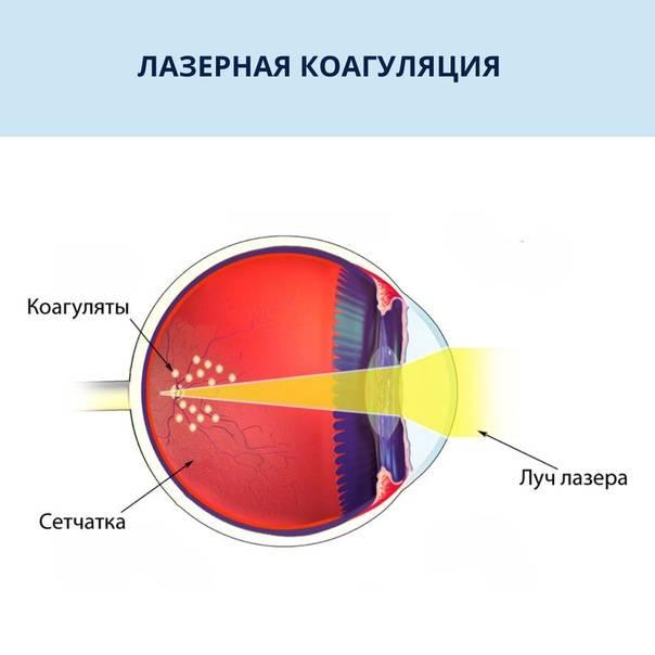 Лазерная коагуляция сетчатки глаза при беременности, противопоказания - народная медицина