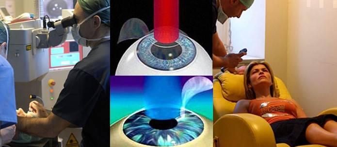 Лазерная иридэктомия - показания, как проводят, последствия, отзывы