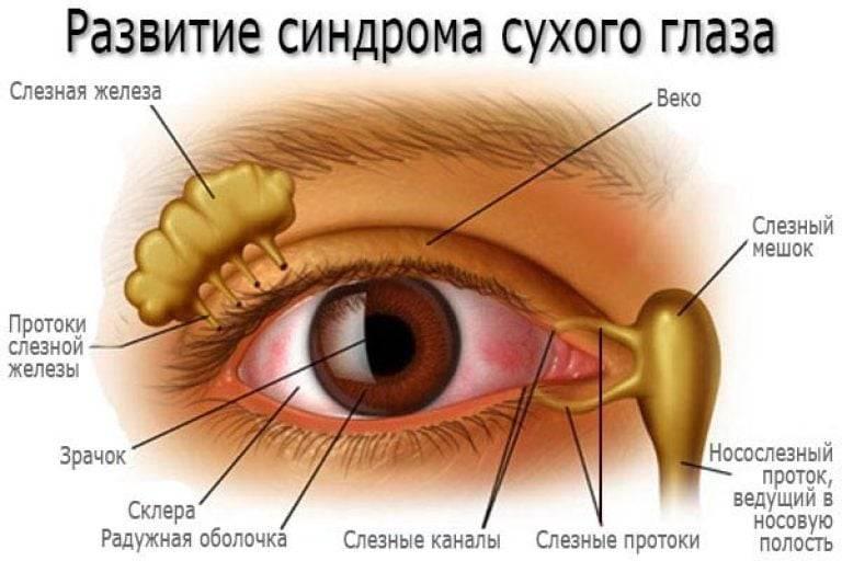Каковы симптомы синдрома сухого глаза и чем лечиться?