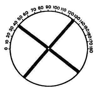 Транспозиция астигматических линз – как правильно подобрать корректирующее средство?