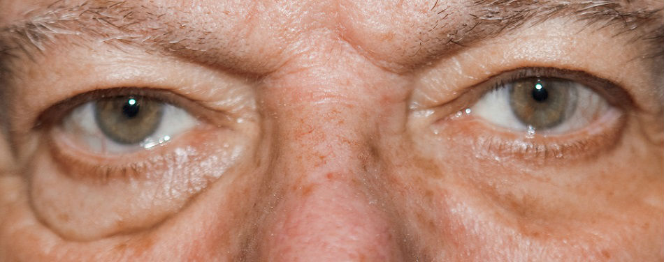 Мешки под глазами. причины появления мешков под глазами. как избавиться от мешков под глазами? :: polismed.com
