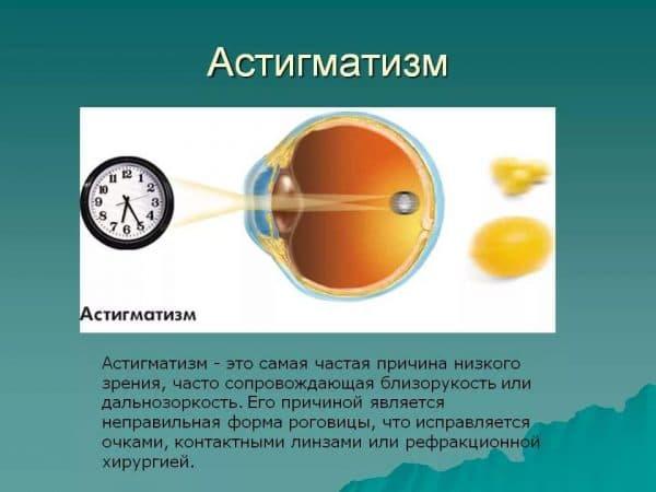 Про миопический астигматизм