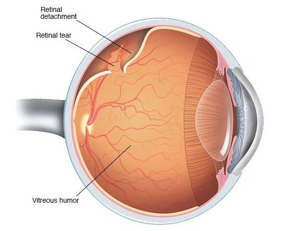 Боковое зрение у мужчин и женщин: как называется и способы развития