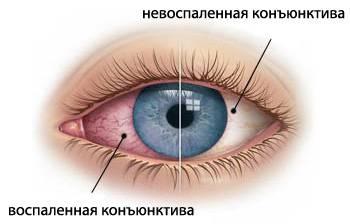 С чем может быть связана резкая боль в глазу?