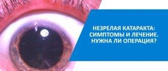 Незрелая катаракта: что это такое, как распознать, нужна ли операция