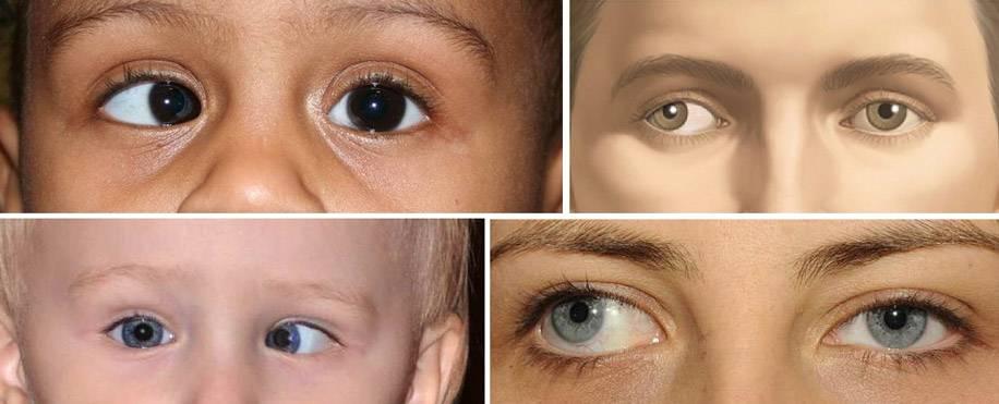 Глаза в разные стороны - вижу супер