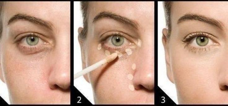 Как быстро убрать синяк под глазом, как избавиться от гематомы в домашних условиях: самые эффективные средства