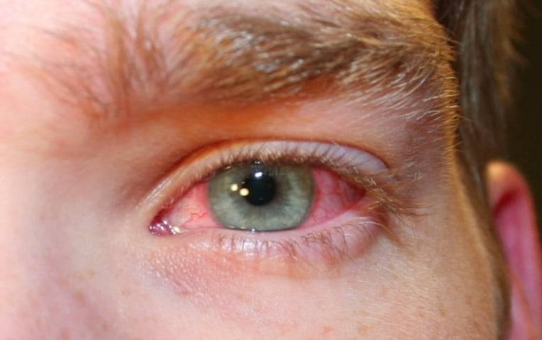 Покраснел глаз: что делать в домашних условиях