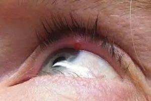 Уплотнение на нижнем веке глаза после ячменя