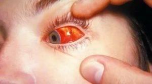Продуло глаз — что делать и как лечить