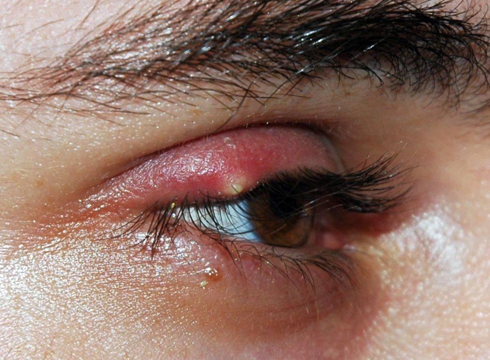 Простуда на глазу что делать и как лечить. продуло глаз: симптомы, особенности лечения.