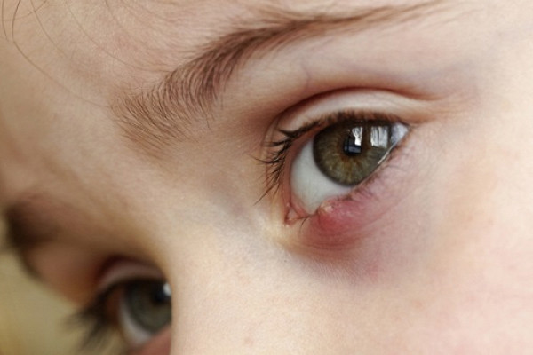 Ячмень на глазу ребенка: как правильно лечить и можно ли предупредить появление?