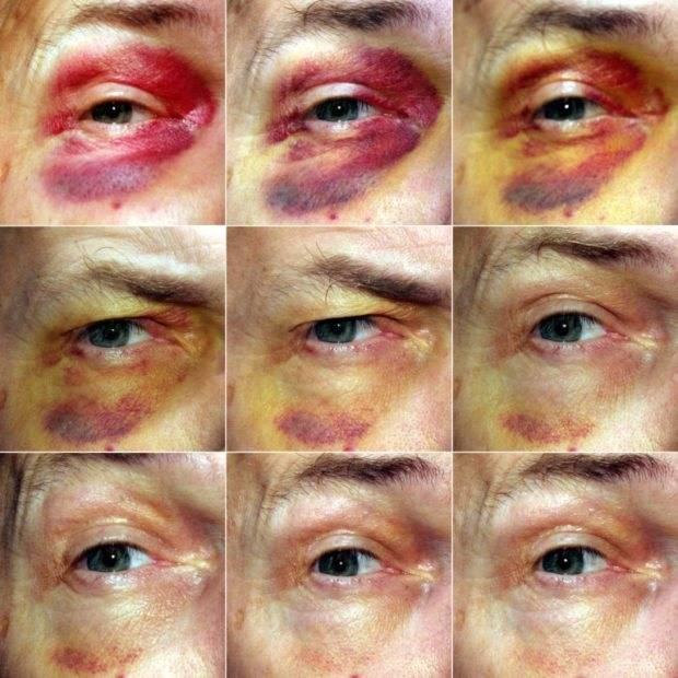 Как быстро вылечить синяк под глазом от удара – простые методы