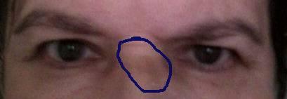 Синие круги под глазами, причины у женщин