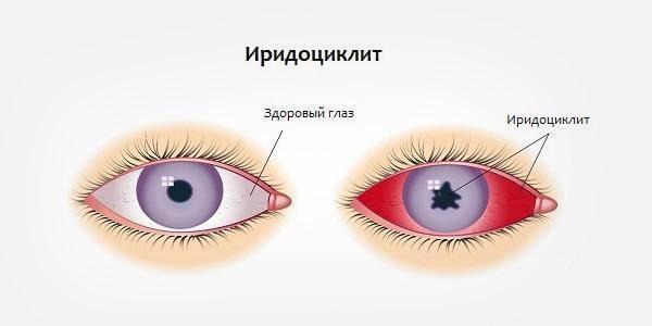 Увеит (воспаление сосудистой оболочки глаза): причины, формы, признаки, лечение
