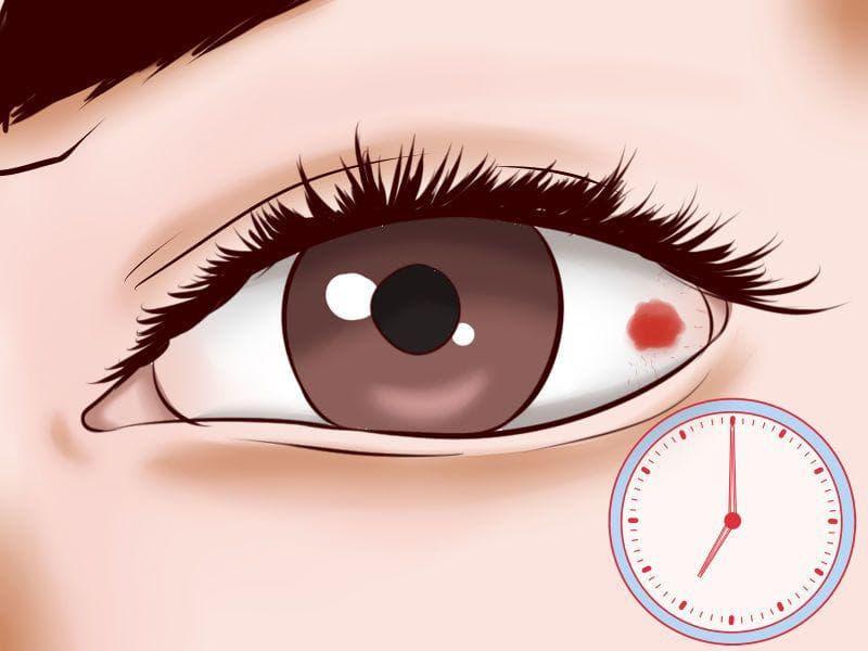 Как быстро снять покраснение глаз — красивое лицо
