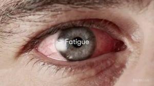 Болят глаза от сварки: что делать в домашних условиях, чем снять боль