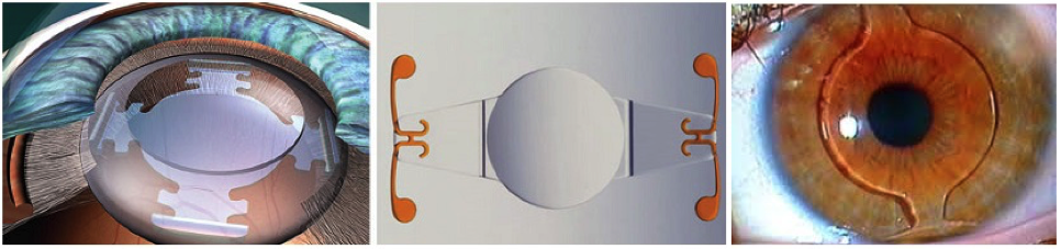 Интраокулярная линза - иол что это: торическая, мультифокальная, искусственные хрусталики