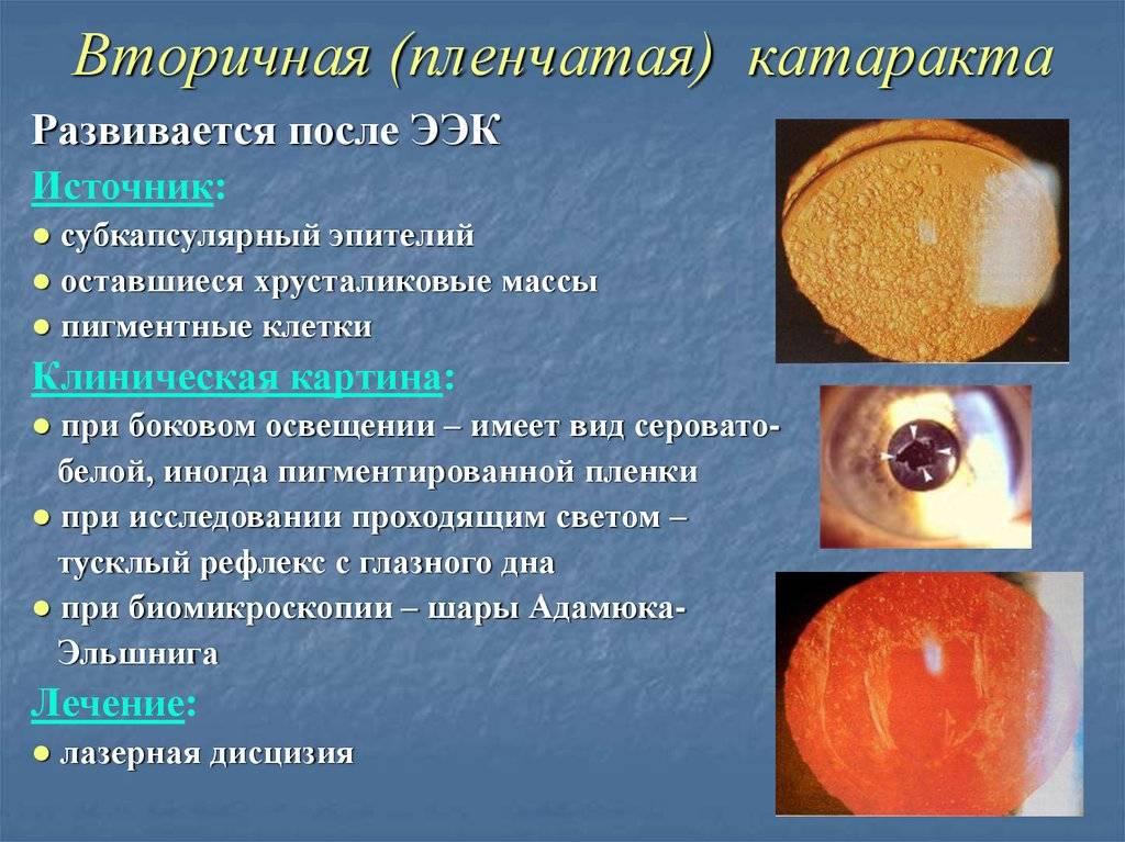 Вторичная катаракта после замены хрусталика: лечение глаза с искусственным хрусталиком, причины и симптомы