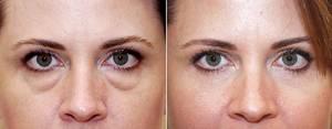 Как избавиться без операции, от грыжи нижних век глаз - способы удаления