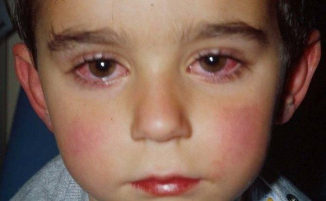 Аллергический конъюнктивит у детей: основные признаки заболевания и советы о том, как его лечить
