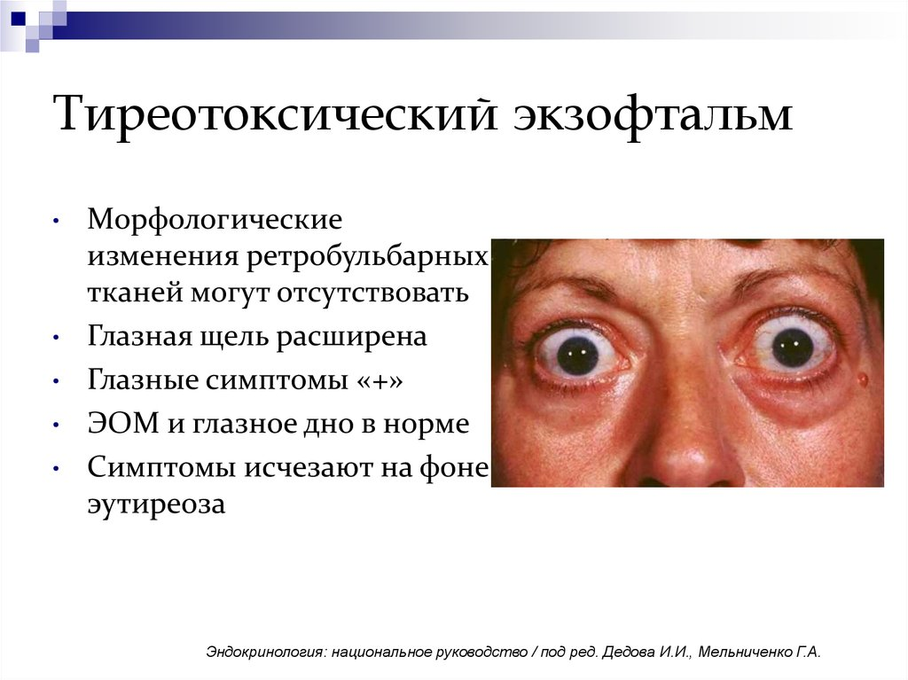 Экзофтальм - это серьезная патология, симптомы, способы лечения