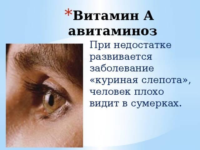 Куриная слепота у человека - почему возникает эта болезнь?