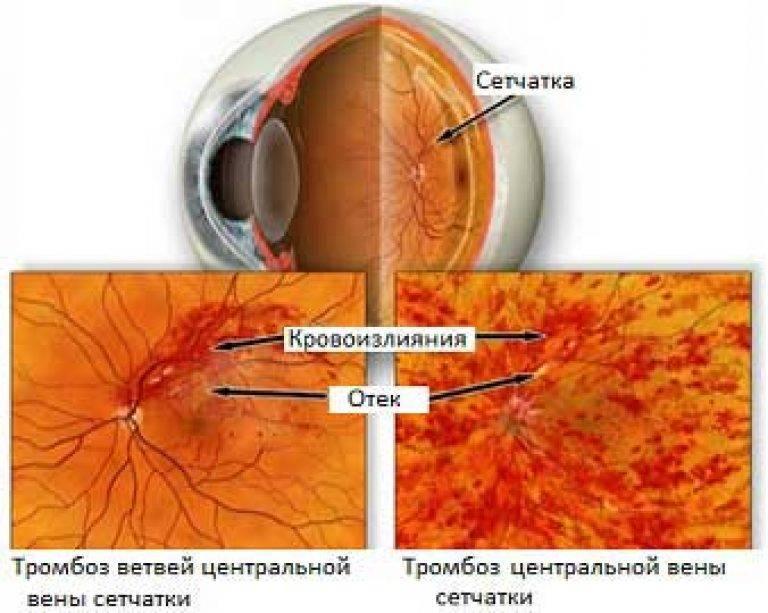 Что такое тромбоз центральной вены сетчатки и как его лечить