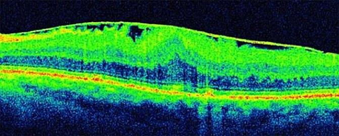 Эпиретинальный фиброз сетчатки - что это, причины и лечение