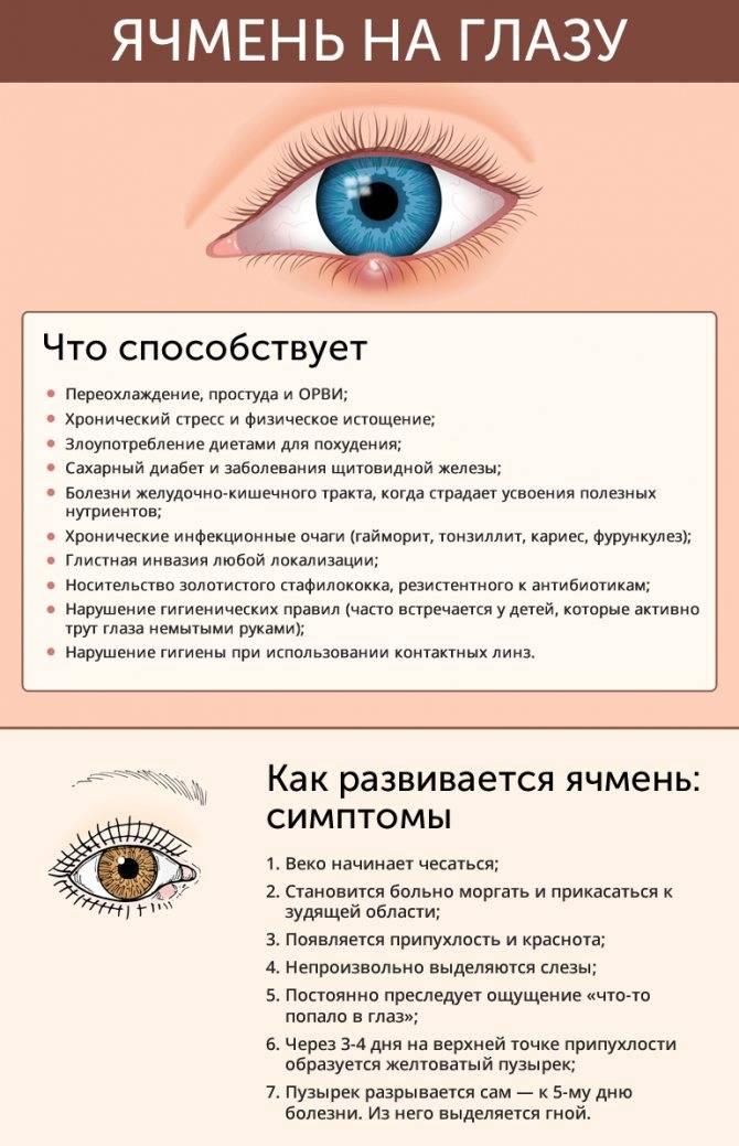 От чего появляется ячмень на глазу: причины возникновения у взрослых