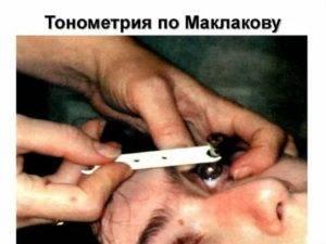 Тонометрия по методу маклакова