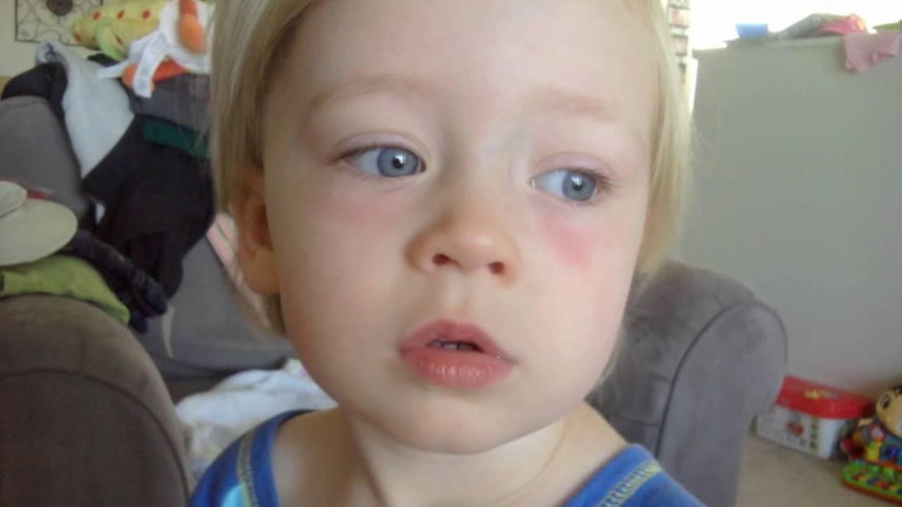 Красные круги под глазами у ребенка откуда и как их устранить?
