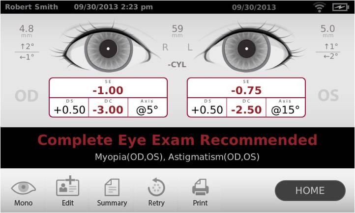 Od os – обозначения для какого глаза в рецепте от офтальмолога