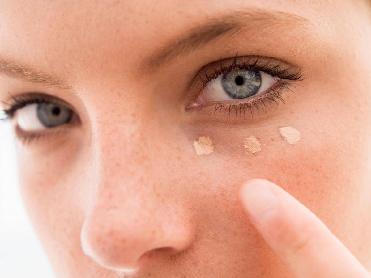 Милиумы (просянка) под глазами: как избавиться от белых точек?
