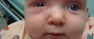 У ребенка слезится один глаз и гнойные выделения