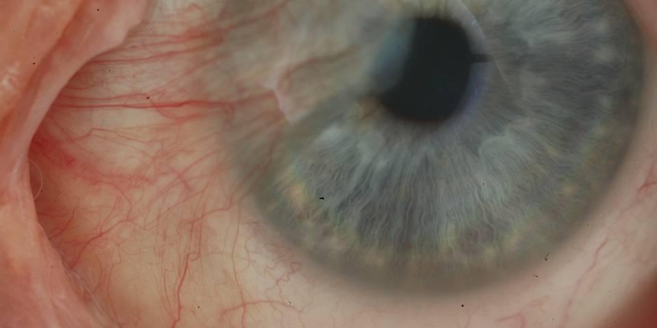 Птеригиум глаза: причины, симптомы и лечение   лечение болезней   healthage.ru