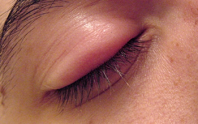 Ячмень на глазу при беременности - как и чем лечить