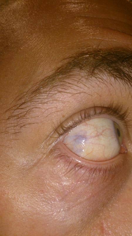Расширенные сосуды в глазах у ребенка и взрослого: причины и лечение