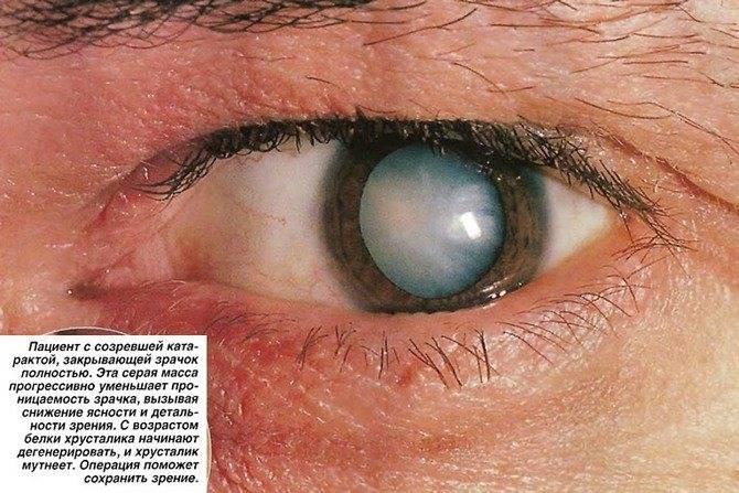 Артифакия глаза - что это такое, как лечить у взрослых артификацию левого глаза, код по мкб-10, дислокация иол, диагноз