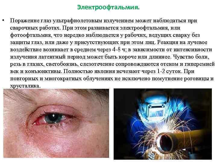 Эндокринная офтальмопатия: что это, лечение, клинические рекомендации, классификация и симптомы