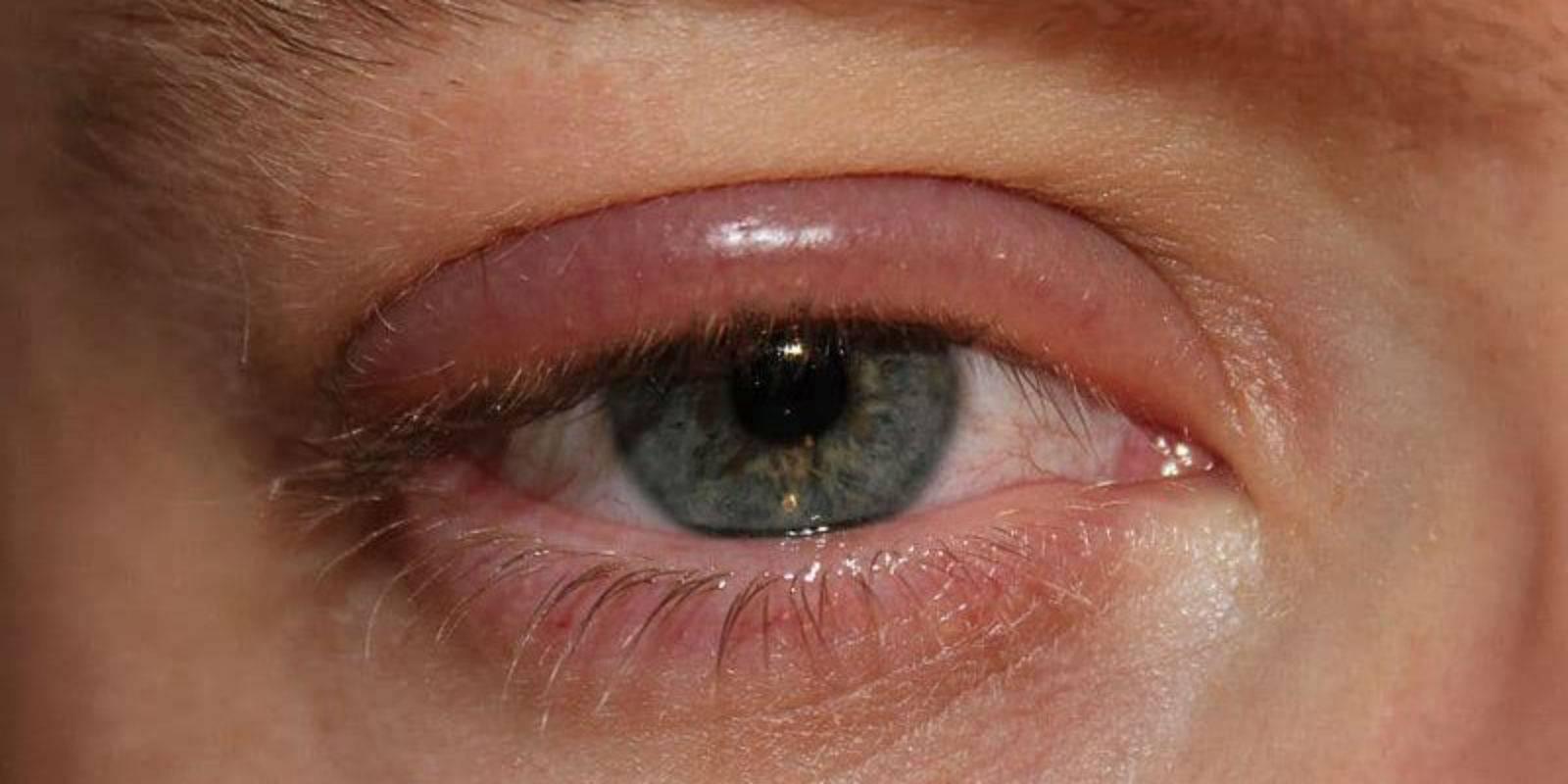 Опухло верхнее веко над глаза, что делать и как лечить