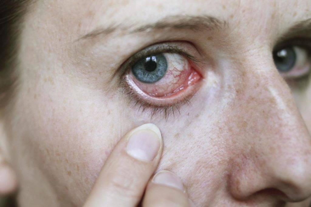 Конъюнктивит у детей: причины, признаки, симптомы и лечение