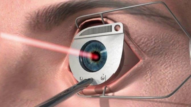 С каким зрением можно делать лазерную коррекцию зрения: показания при минусе и для плюсового видения, случаи, когда лкз нельзя