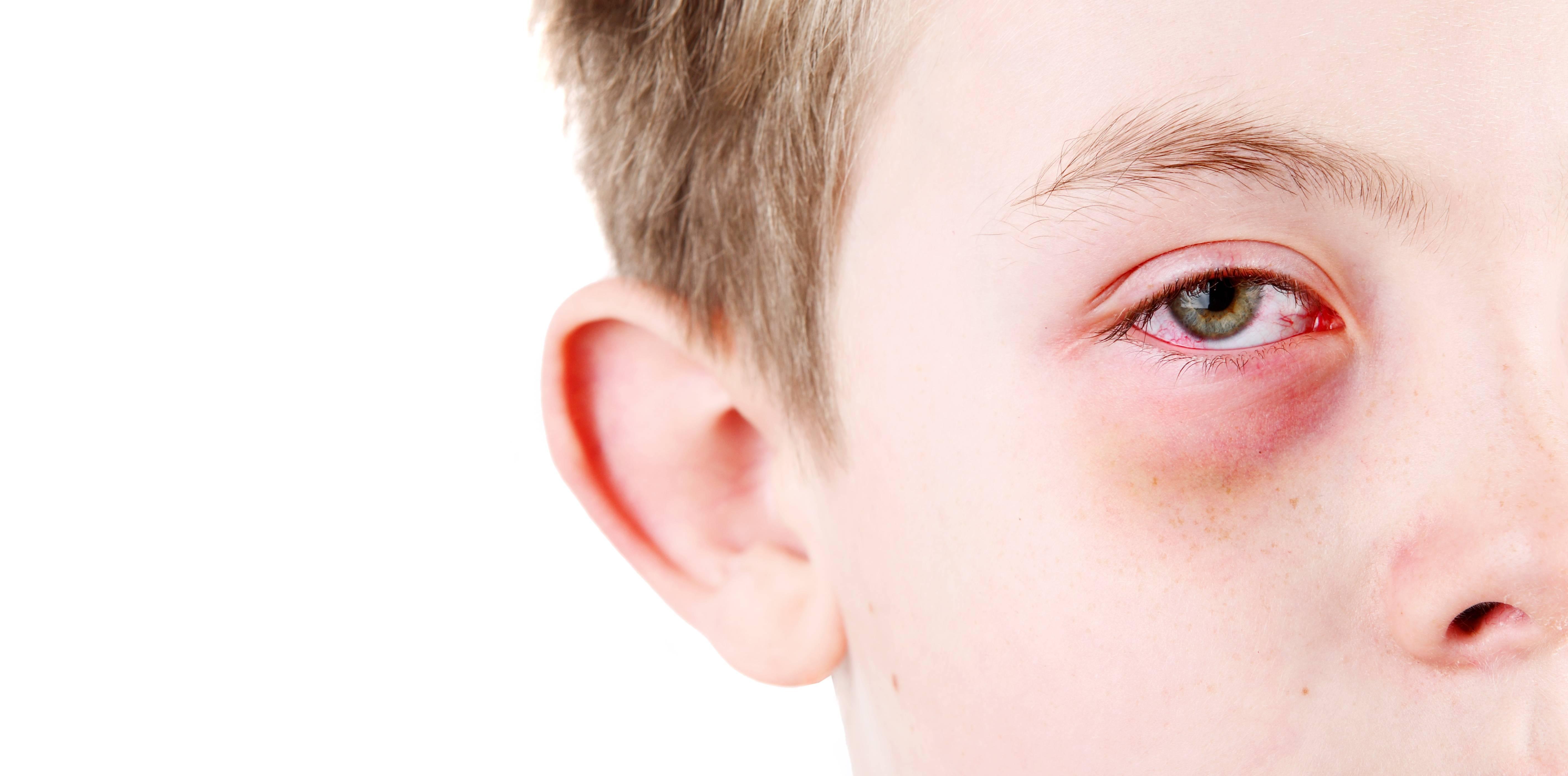 Конъюнктивит у ребенка: 95 фото и видео лечения домашних условиях