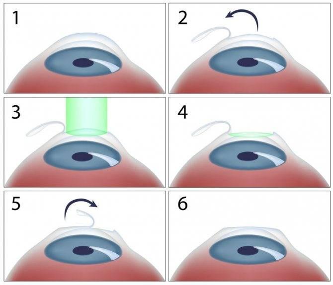Операция ласик (lasik): суть метода, проведение, результат