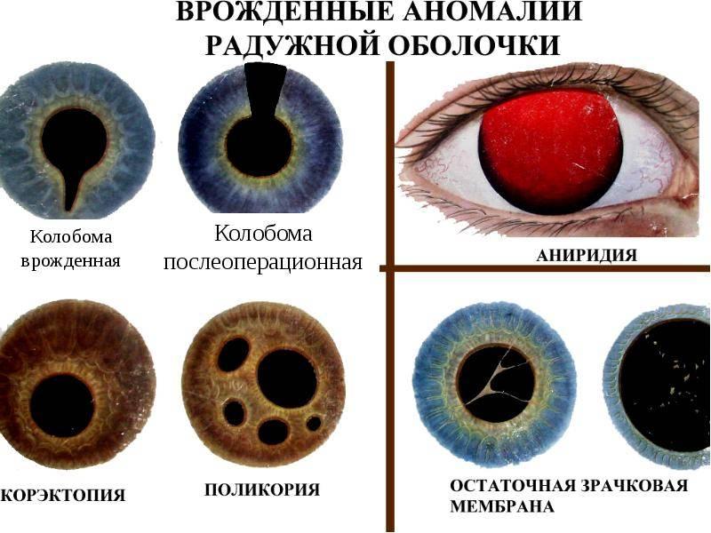Что такое аниридия глаз и ее лечение