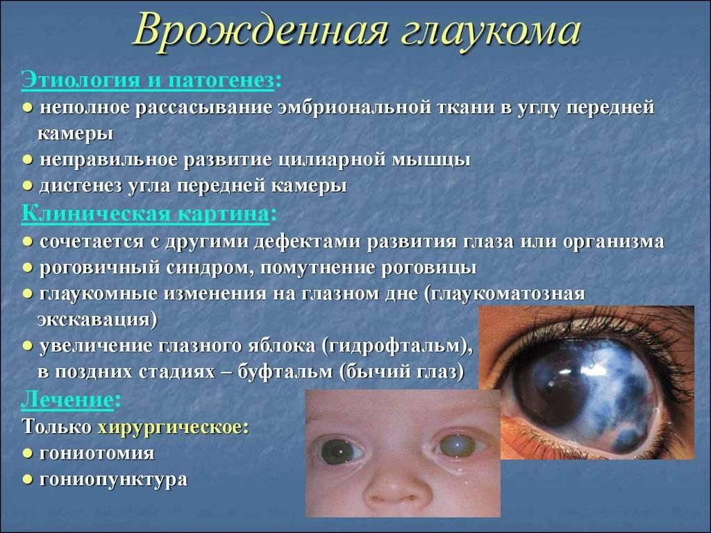 Катаракта у детей: причины, симптомы, лечение