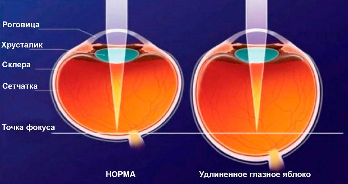 Минус или плюс – очки для зрения при близорукости для дали